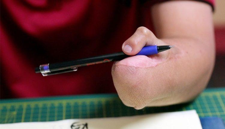 斷臂後心理重建路漫漫,終於又能再用「雙手」握著筆寫字。(陳信翰攝)